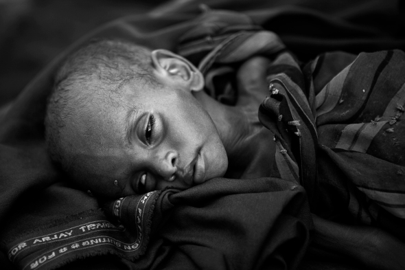 Somalia Food Crisis 2011