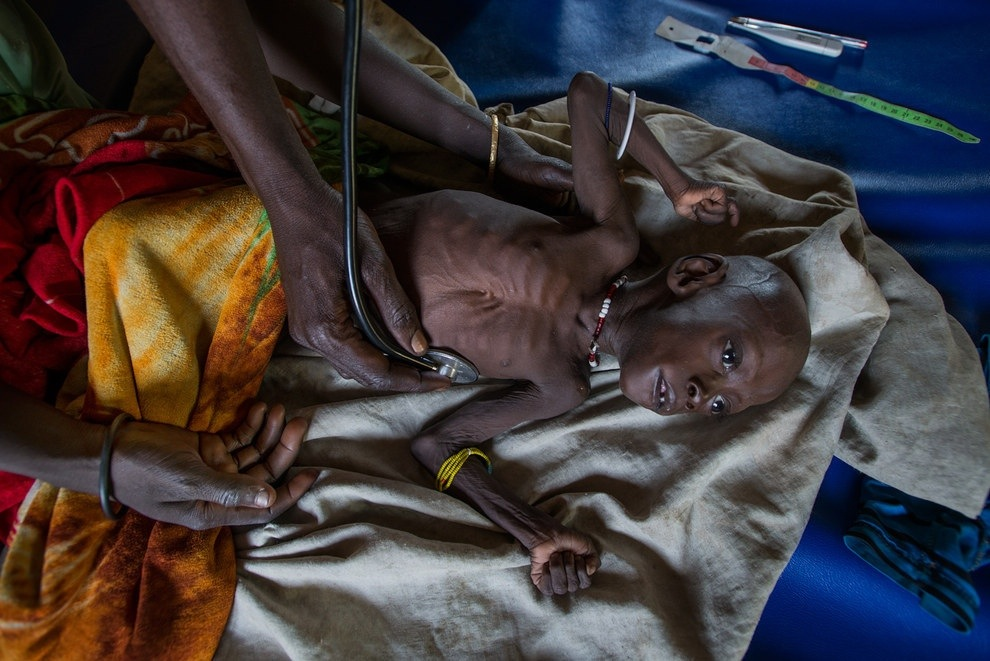 sudan famine essay The image presaged no celebration: a child barely alive, a vulture so eager for carrion yet the photograph that epitomized sudan's famine would win kevin carter fame -- and hopes for anchoring a career spent hounding the news, free- lancing in war zones, waiting anxiously for assignments amid dire.