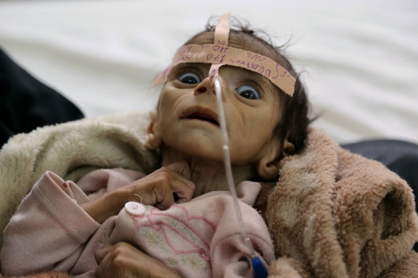 yemen-udai-faisal